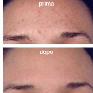 fototerapia_acne