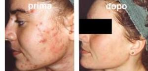 fototerapia_acne_viso
