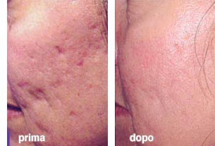 Rimozione dei capelli per il viso laser chiaro