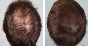 Biostimolazione autologa per la caduta dei capelli e di patologie del cuoio capelluto (PRP)